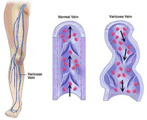 Vascular Surgeon In MS, Varicose Veins Image - Spring of Youth Medical Group