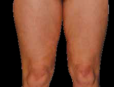 Cellulite front of thigh after EPAT treatment