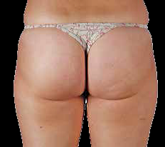 Upper Thigh Cellulite After EPAT® Treatment