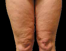 Cellulite front of thigh before EPAT treatment