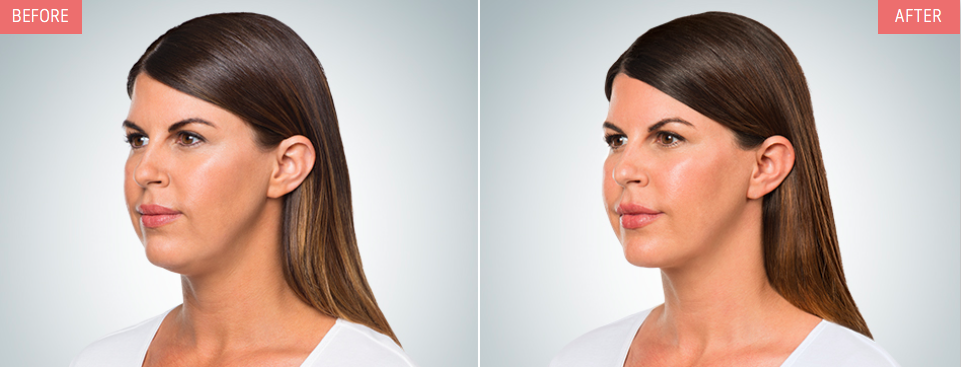 SOY-Kybella-Double Chin