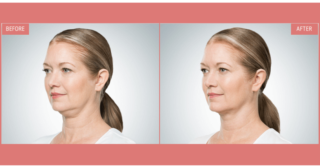 Kybella doube chin treatment before and after image