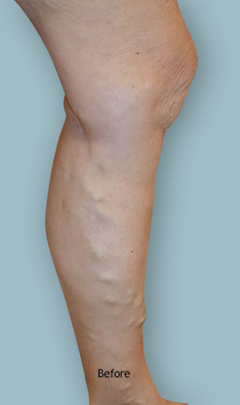 Leg before varicose vein treatment