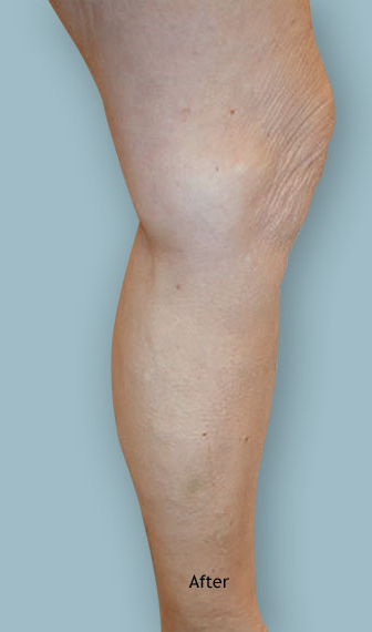 Leg after varicose vein treatment