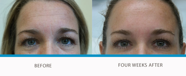Client-Image-AMY-Forehead
