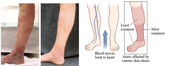 Vein Disease-Before And After