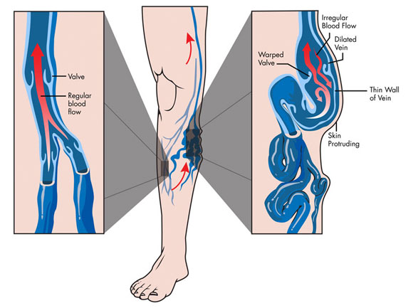 Vascular Surgeon In MS, Ambulatory Phlebectomy Image - Spring of Youth Medical Group