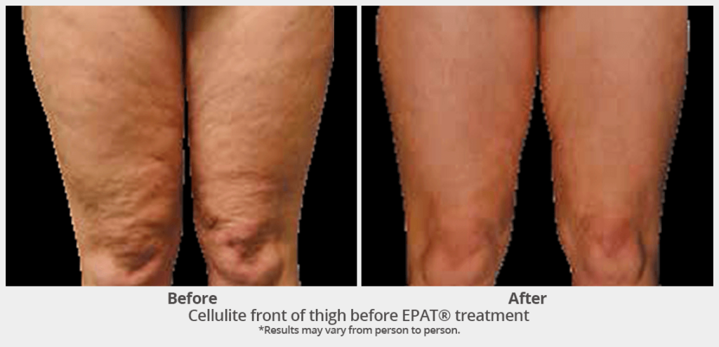 EPAT-Front Thigh Cellulite EPAT Treatment