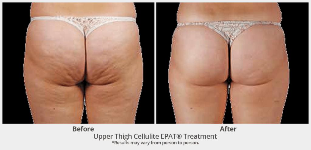 EPAT-Upper Thigh Cellulite EPAT Treatment