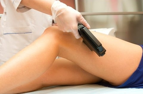 laser-therapy-for-varicose-veins