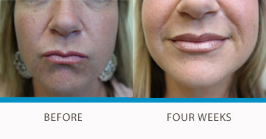 Juvederm Lip Filler