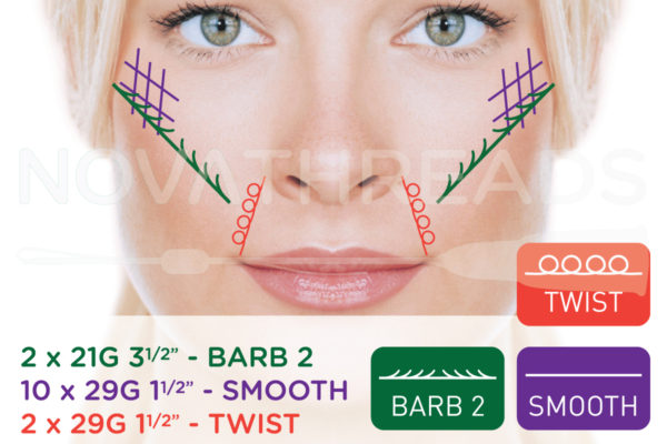 thread facelift high cheek bones