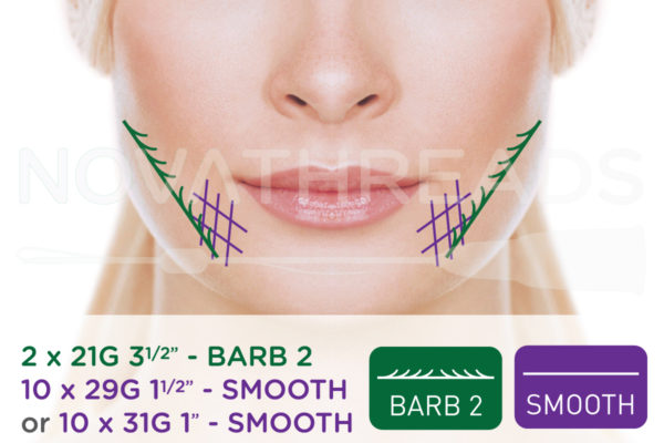 thread facelift cheeks and mouth