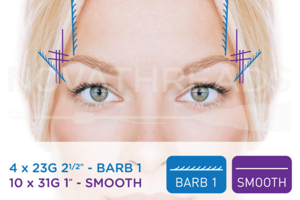 thread facelift eye brows