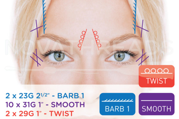 thread facelift eye brow