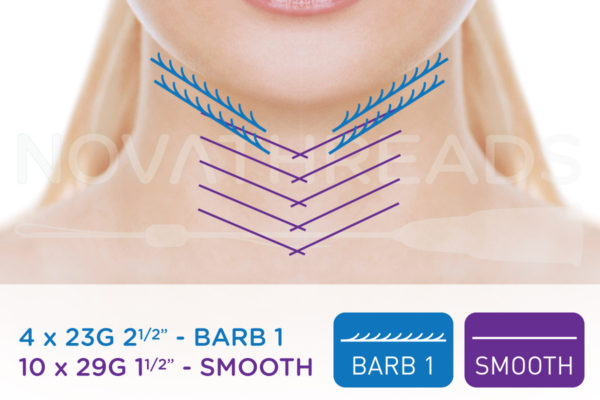 thread facelift neck and jaw
