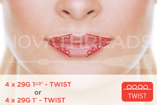 thread facelift lip line